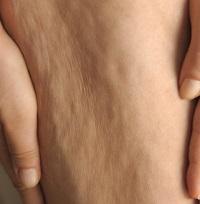 anti cellulite