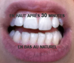 avis blanchiment des dents