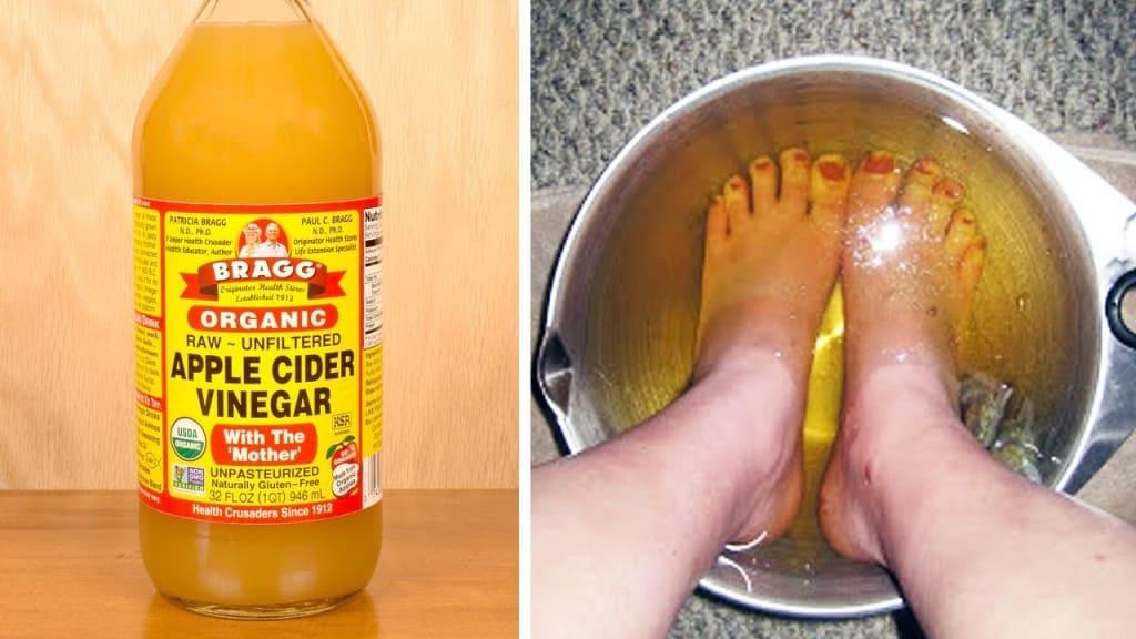 bain de pied avec bicarbonate de soude