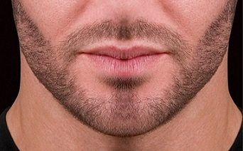 barbe 3mm