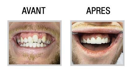 dentiste avis