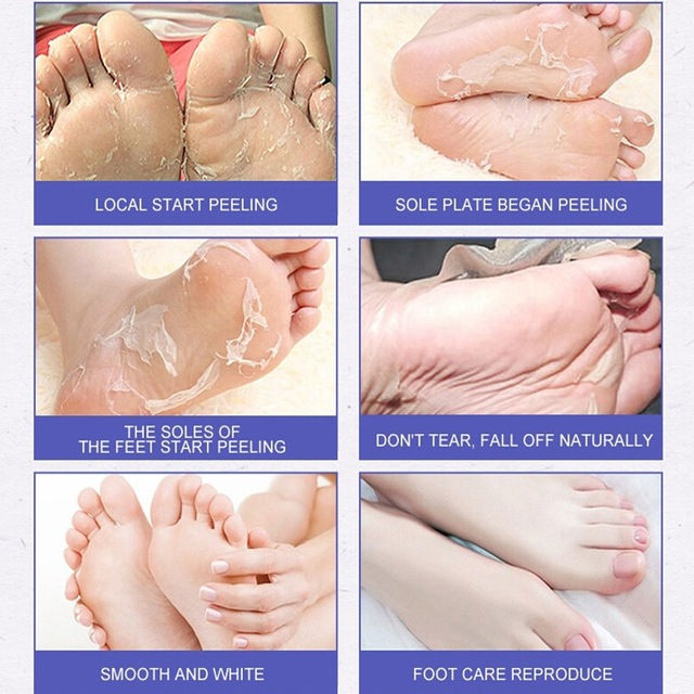 enlever peau morte des pieds