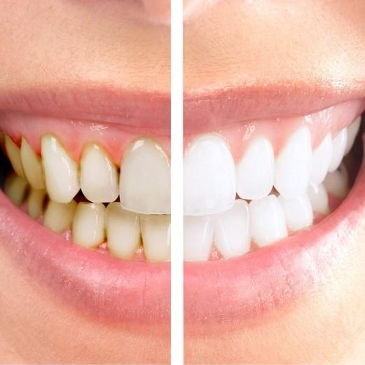 meilleur kit blanchiment des dents